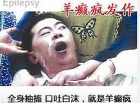 昆明有哪些方法可以治癫